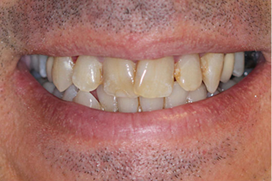 Dallas dental implants, restorative and cosmetic dentistry